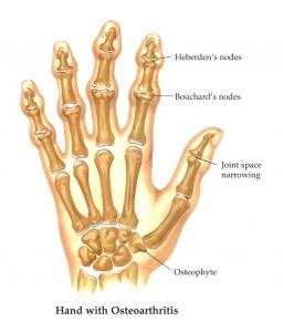 arthritis003
